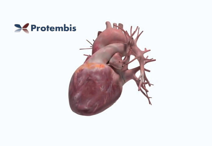 Protembis-startup