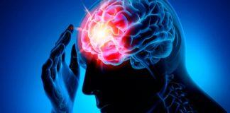 ischemic stroke